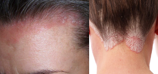 psoriasis of the head