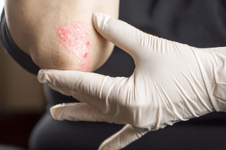 The initial stage of psoriasis