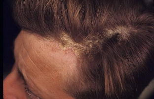 causes of psoriasis of the scalp