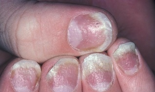 stage of psoriasis on nails